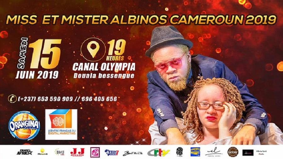 L'élection Miss et Mr albinos se tiendra le 15 juin prochain à Douala